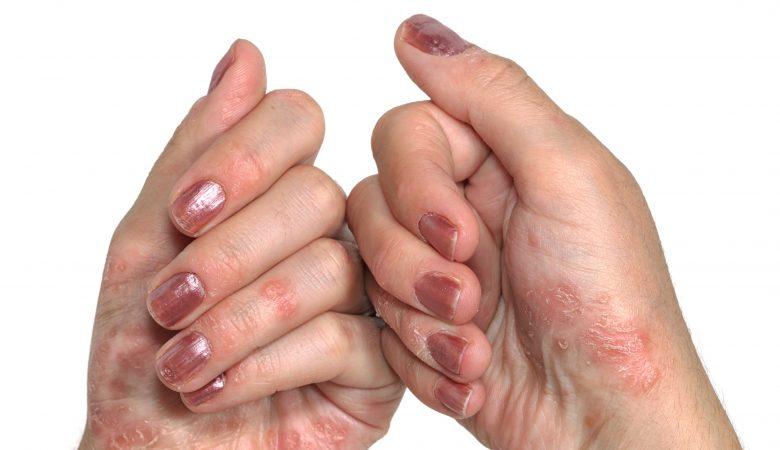 درمان پوسته پوسته شدن کف دست باطب سنتی