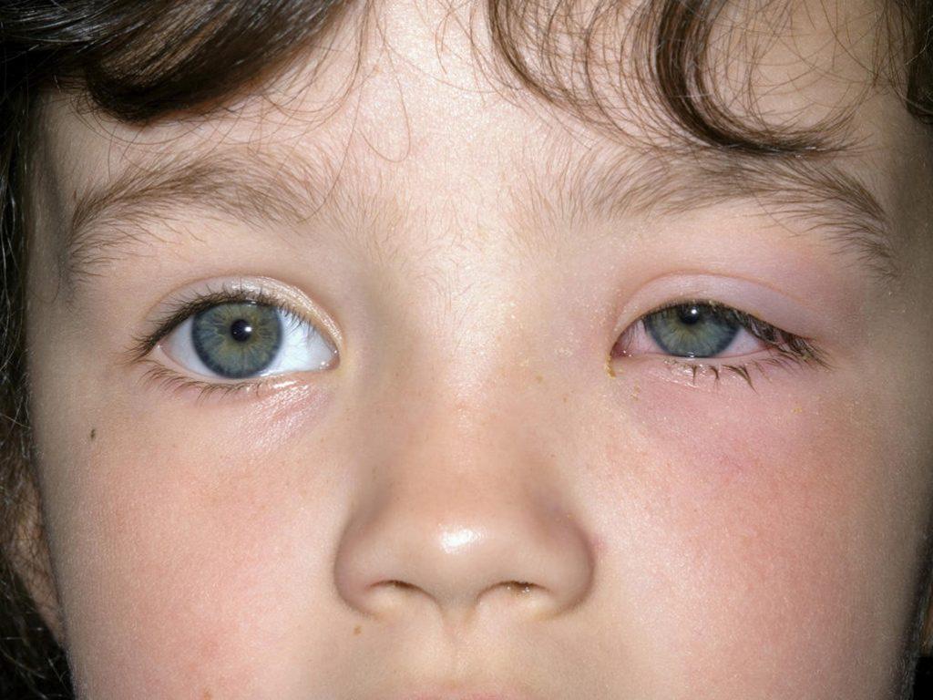 نشانه ها و علائم انواع تورم پلک چشم (بلفاریت) در نوزادان