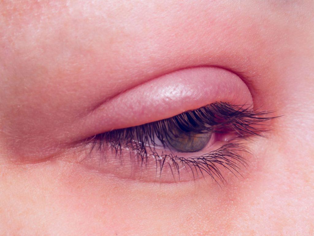 چه افرادی در معرض خطر تورم پلک چشم قرار دارند؟