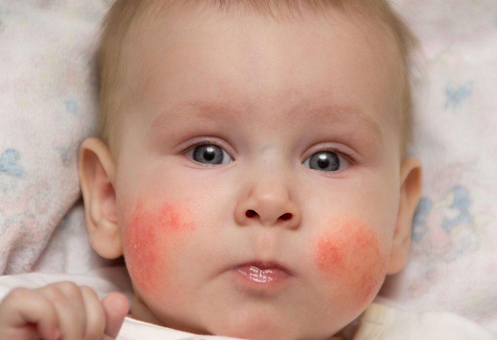 زرد زخم در نوزادان: علل، علائم، درمان و روش پیشگیری