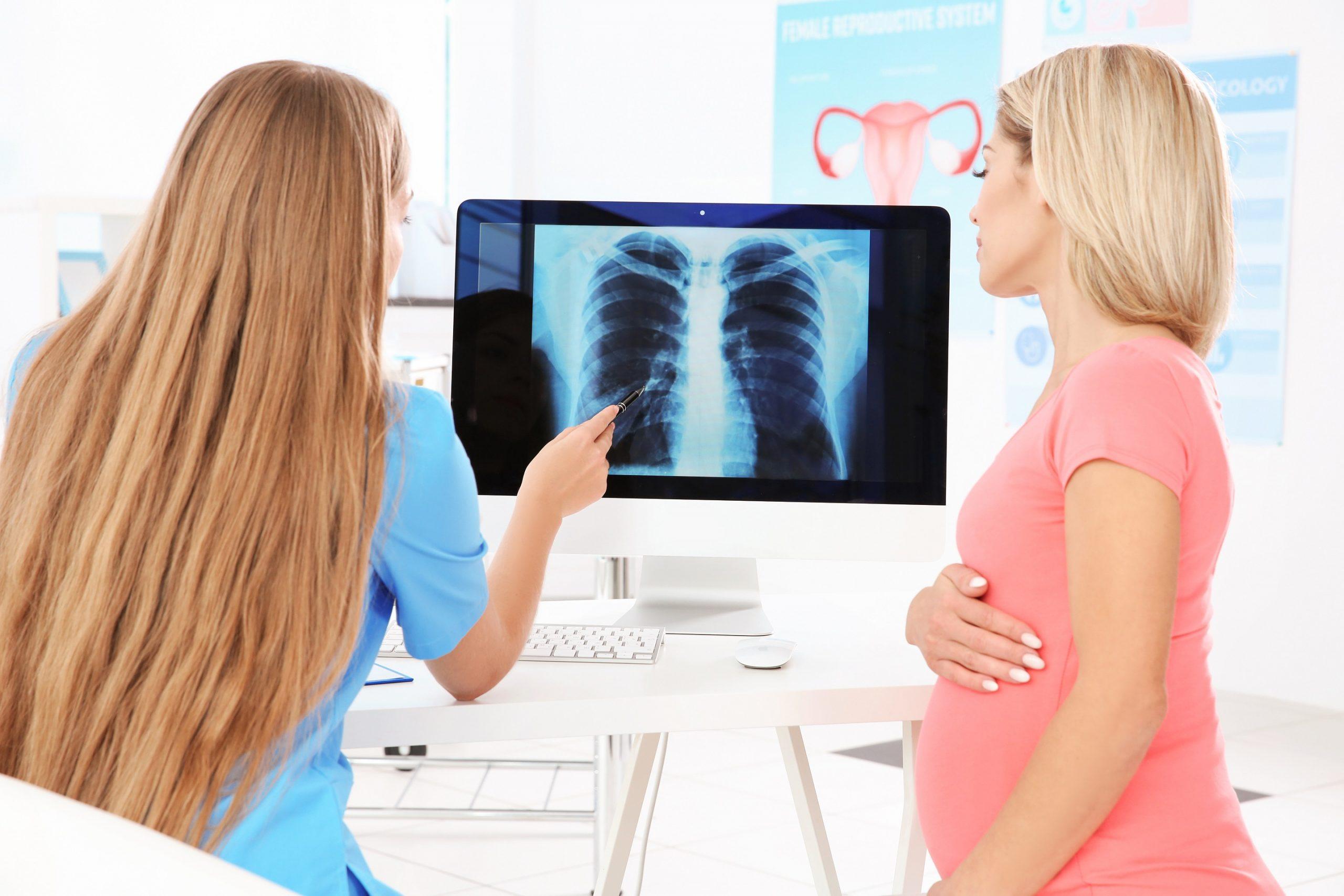 خطرات اشعه ایکس در دوران بارداری