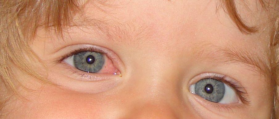 چشم صورتی در نوزاد چیست