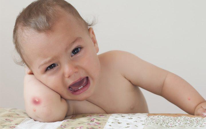 کورک در نوزادان: علائم، علل، پیشگیری و 9 درمان خانگی