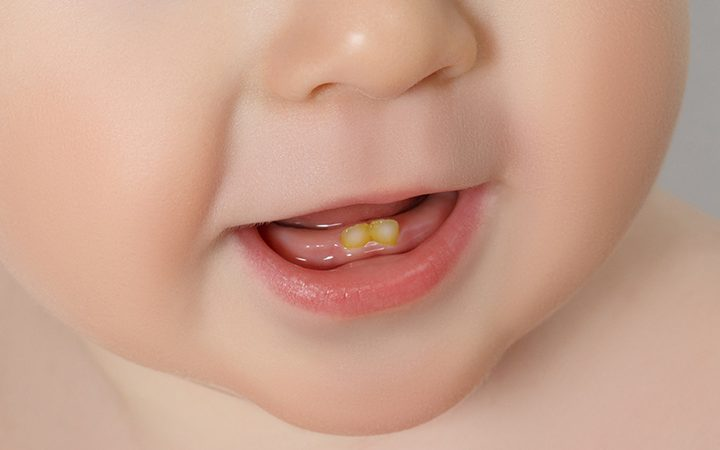 تغییر رنگ دندان در نوزادان و کودکان نوپا