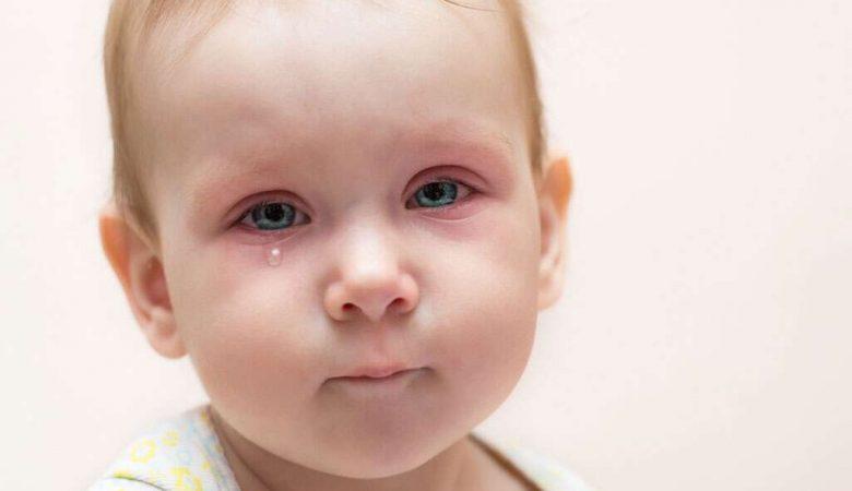 چشمان صورتی در نوزادان