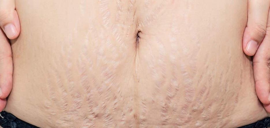 درمان های پزشکی برای برطرف کردن ترک های پوستی