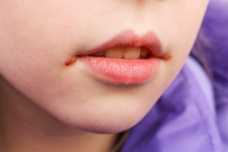 والدین چگونه می توانند زرد زخم در نوزادان را کنترل کنند؟