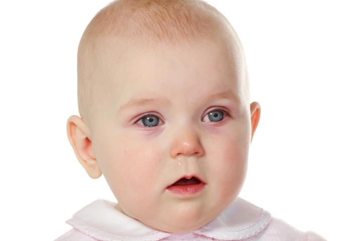 علائم چشمان صورتی در نوزادان چیست