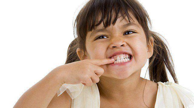 چگونه می توان مانع از تغییر رنگ دندان ها