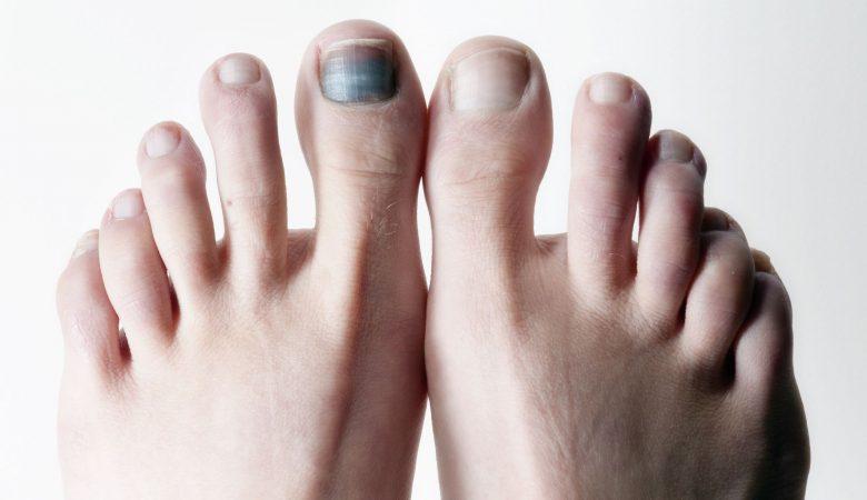 6 علت احتمالی سیاه شدن ناخن پا + درمان و پیشگیری از سیاهی ناخن پا
