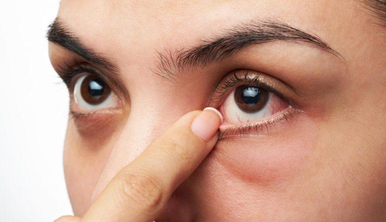 6 عفونت چشم شایع در دوران بارداری؛ علائم و درمان + 8 نکته برای پیشگیری از عفونت چشم