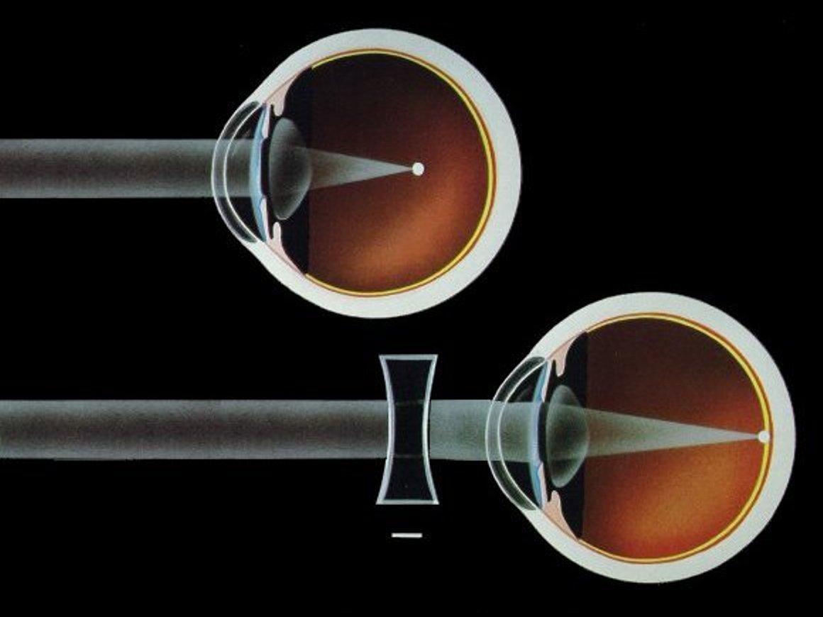 جدیدترین روش درمان نزدیک بینی چشم
