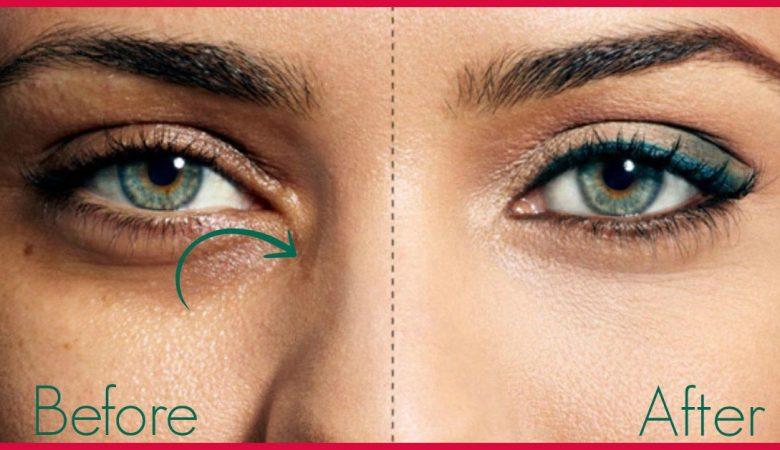 18 علت گود شدن زیر چشم + 8 درمان خانگی و پزشکی برای برطرف کردن گودی زیر چشم