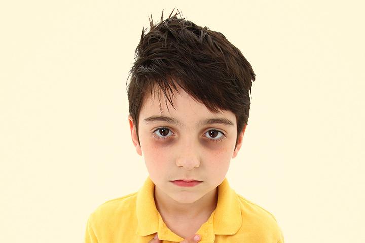 عوارض احتمالی بیماری برای گودی تیره در زیر چشم کودکان