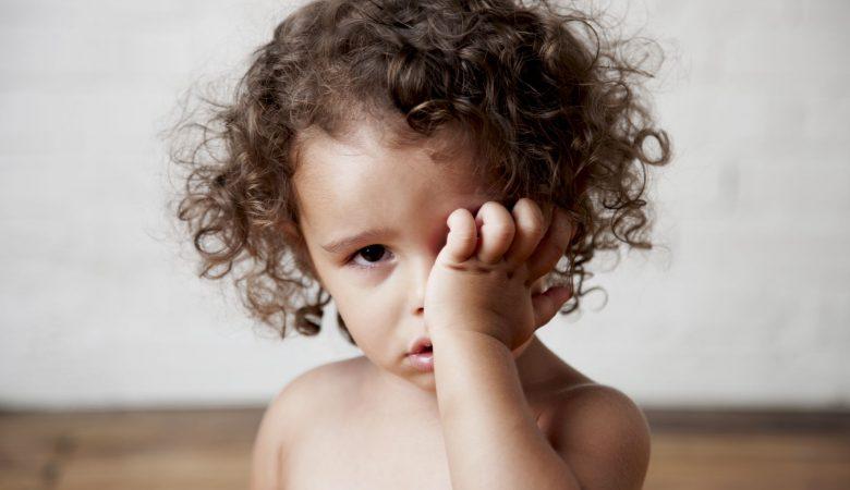گودی تیره زیر چشم کودکان: علل، بیماری ها و درمان سیاهی زیر چشم