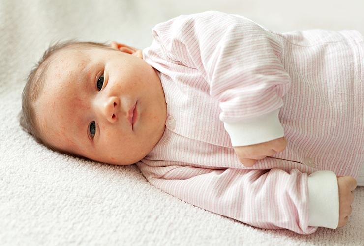میلیا در نوزادان، کودکان و بزرگسالان