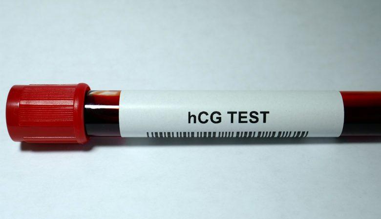 چه زمانی سطح هورمون HCG بعد از سقط جنین به حالت اولیه خود بر می گردد؟