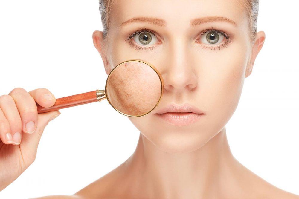 بهترین راه ها برای خلاص شدن از شر منافذ باز پوست