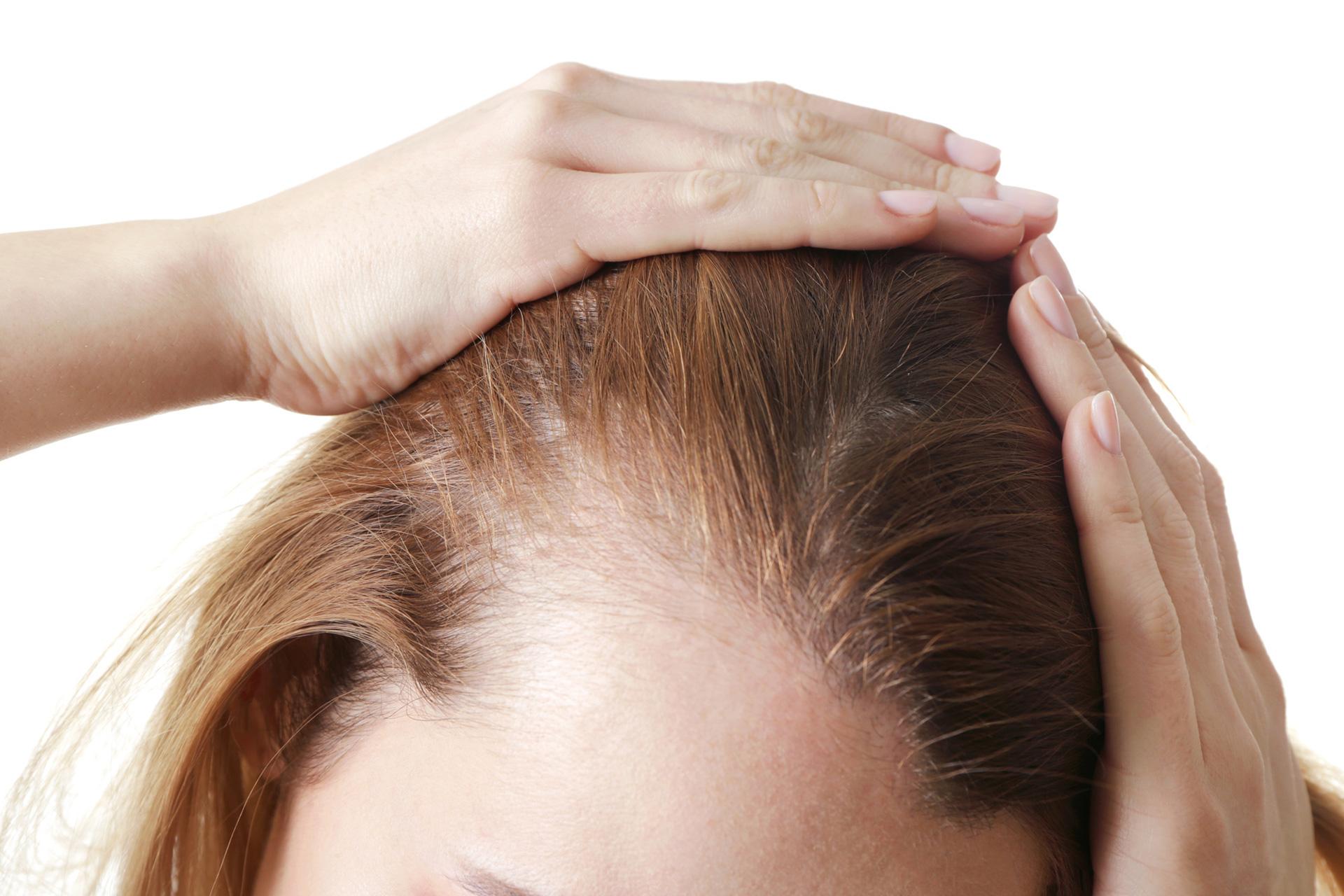 مدیریت ریزش موها پس از زایمان