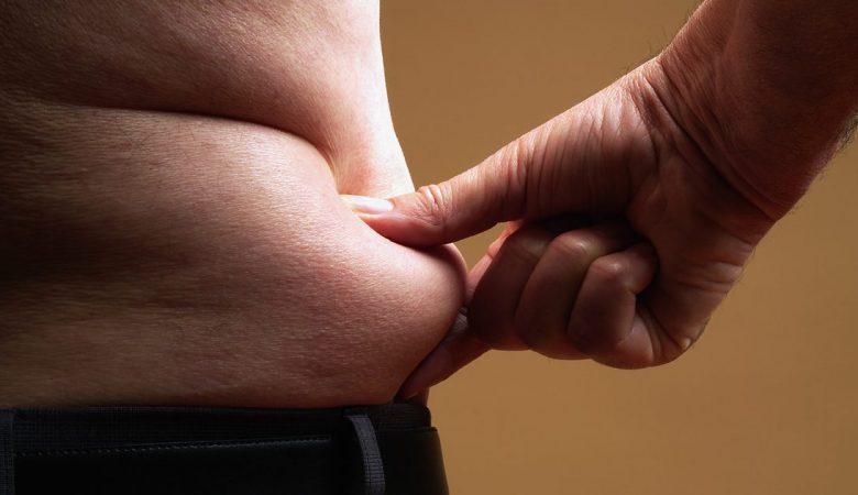 جراحی شکم یا ابدومینوپلاستی