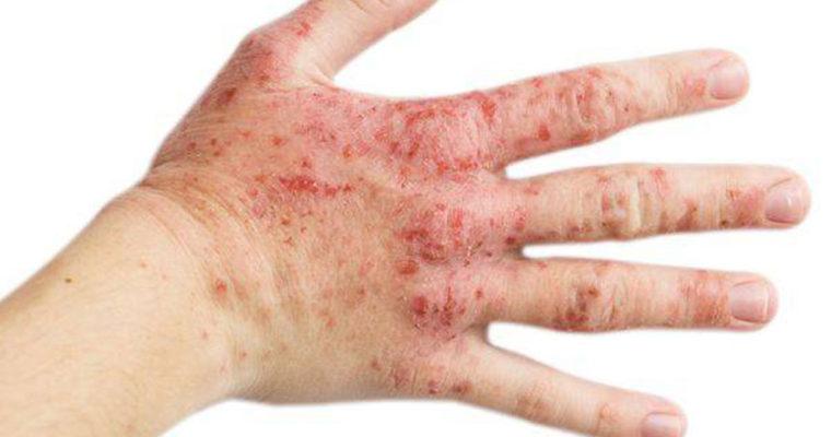 اگزما پوست
