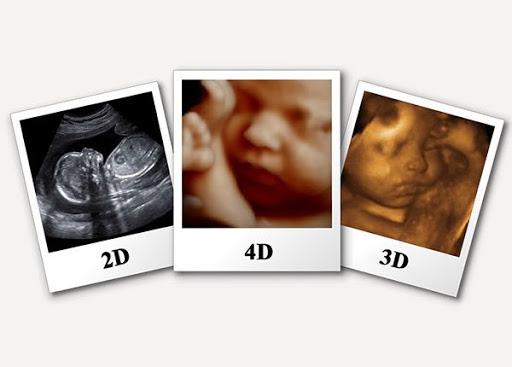 چه خانم هایی به سونوگرافی سه بعدی نیاز دارند؟